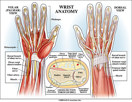 Tendonitis In The Wrist. extend the wrist and hand.